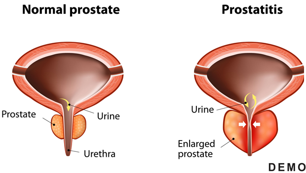 Enlarged Prostate (BPH)